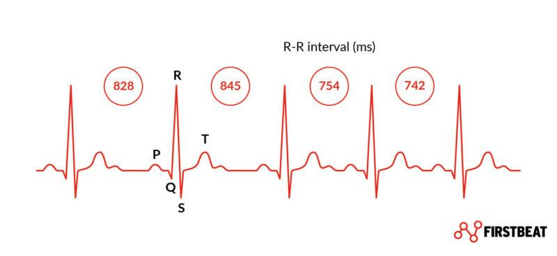 Heart rate variability (HRV) - R-R-interval